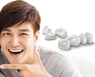 tooth crowns bridges