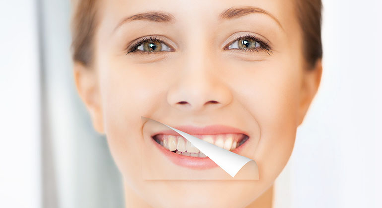 tooth whitening in thailand